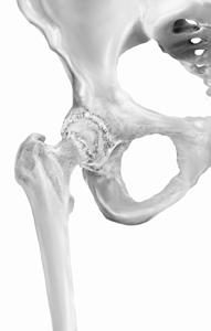 Arthritic hip with osteophytes